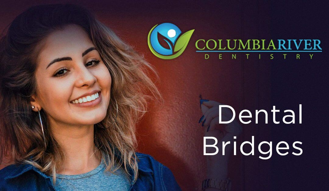 Your Questions About Dental Bridges Answered