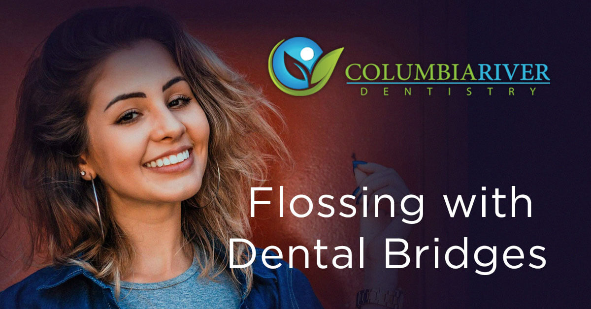 How to Floss with a Dental Bridge